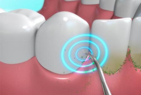 DentaPic Sonic | Verwijder tandsteen, tandplak en verkleuringen met deze elektrische flosser